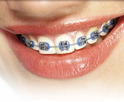 Example of metal braces