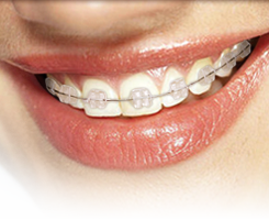 Example of ceramic braces