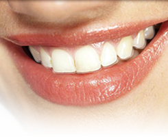 Example of clear aligners like Invisalign