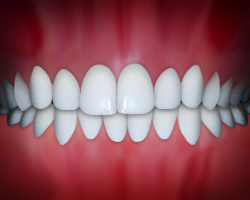 Example of dental midlines
